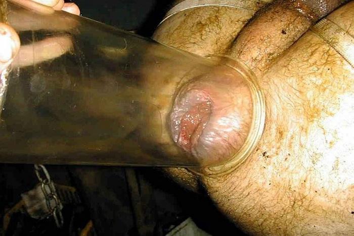 Чем лечат папилломавирус шейки матки